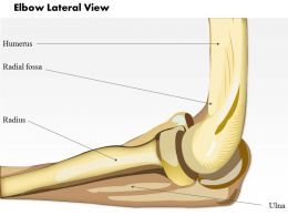 0514 Elbow Lateral Medical Images For Powerpoint