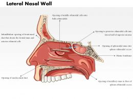 0514 Lateral Nasal Wall Medical Images For PowerPoint
