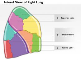 0514 Lateral View Of Right Lung Human Anatomy Medical Images For PowerPoint