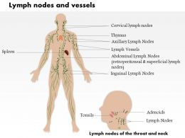 0514 Lymph Nodes And Vessels Medical Images For Powerpoint