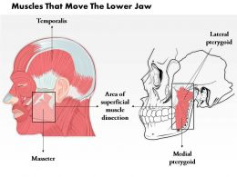 0514 Muscle That Move The Lower Jaw Medical Images For Powerpoint