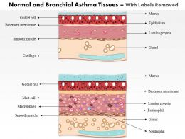 0514 Normal and Bronchial Asthma Tissues Medical Images For PowerPoint