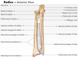 0514 Radius Anterior View Medical Images For PowerPoint