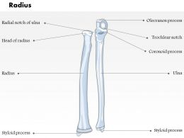 0514 Radius Ulnar View Medical Images For PowerPoint