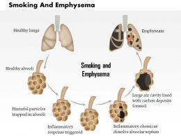 0614 Smoking And Emphysema Medical Images For Powerpoint
