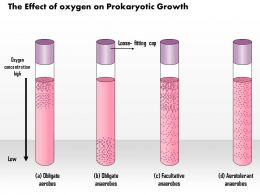 0614 The Effect Of Oxygen On Prokaryotic Growth Medical Images For Powerpoint