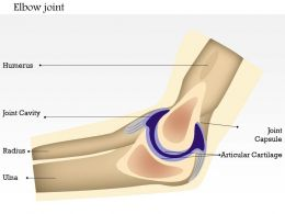0714 Elbow Joint Medical Images For PowerPoint