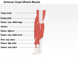 0714 Extensor Carpi Ulnaris Muscle Medical Images For PowerPoint