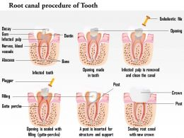 0714 illustration of root canal procedure of tooth