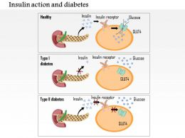 0714 Insulin action and diabetes type 1 and type 2 Medical Images For PowerPoint