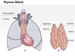 0714 Thymus Gland Medical Images For PowerPoint