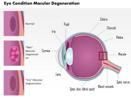 0814 Eye Condition Macular Degeneration Medical Images For Powerpoint