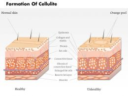 0814 Formation Of Cellulite Medical Images For Powerpoint