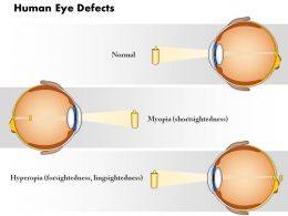 0814 Human Eye Defects Myopia And Hyperopia Medical Images For Powerpoint