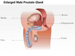 0814 Illustration Of An Enlarged Male Prostate Gland Medical Images For Powerpoint