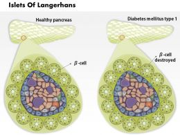 0814 Islets Of Langerhans And Diabetes Mellitus Type 1 Medical Images For Powerpoint