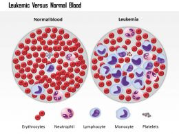 0814 Leukemic Versus Normal Blood Medical Images For Powerpoint