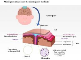 0814 Meningitis Infection Of The Meninges Of The Brain Medical Images For Powerpoint