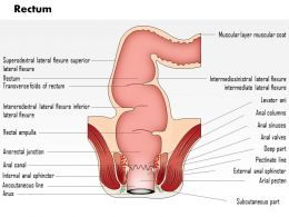0814 Rectum Medical Images For PowerPoint