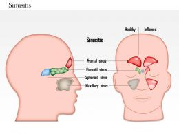 0814_sinusitis_medical_images_for_powerpoint_Slide01
