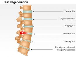 0814 Spine Conditions Medical Images For Powerpoint
