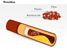 0814 Thrombus Medical Images For Powerpoint