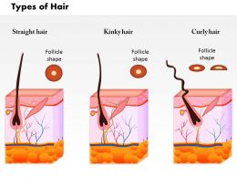 0814 Types Of Hair Medical Images For PowerPoint