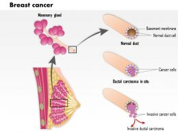 0914 Breast Cancer Medical Images For PowerPoint