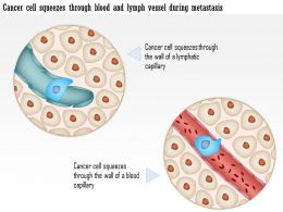 0914_cancer_cell_squeezes_through_blood_and_lymph_vessel_during_metastasis_medical_images_for_powerpoint_Slide01