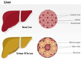 0914 Cirrhosis Of The Liver And Normal Liver Structure Medical Images For PowerPoint