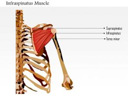 0914 Infraspinatus Muscle Medical Images For PowerPoint