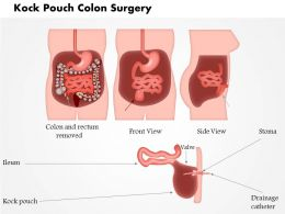 0914 Kock Pouch Colon Surgery Medical Images For PowerPoint