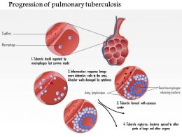 0914 Progression Of Pulmonary Tuberculosis Medical Images For PowerPoint