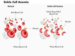 0914 Sickle Cell Anemia Medical Images For PowerPoint