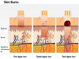 0914 Skin Burns Medical Images For PowerPoint