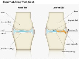 0914 Synovial Joint With Gout Medical Images For PowerPoint