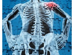 1114 Human Anatomy With Shoulder Pain Stock Photo