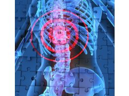 1114 Human Spine In X Ray Blue Background Stock Photo