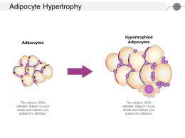 Adipocyte Hypertrophy