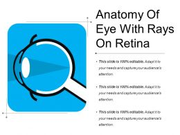 Anatomy Of Eye With Rays On Retina