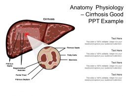 Anatomy Physiology Cirrhosis Good Ppt Example