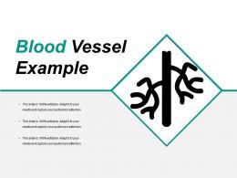 blood_vessel_example_Slide01