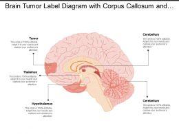 brain_tumor_label_diagram_with_corpus_callosum_and_hypothalamus_Slide01