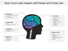 Brain Tumor Label Diagram With Parietal And Frontal Lobe