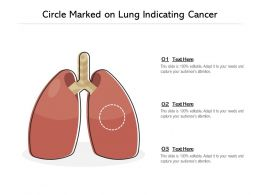 Circle Marked On Lung Indicating Cancer