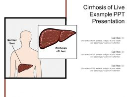 Cirrhosis Of Live Example Ppt Presentation