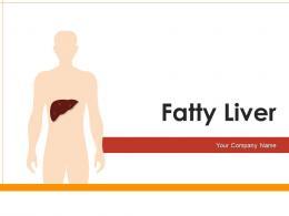 Fatty Liver Comparison Excessive Consumption Development Infographic