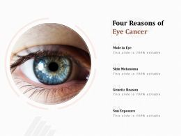 Four Reasons Of Eye Cancer