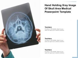 Hand Holding Xray Image Of Skull Area Medical Powerpoint Template