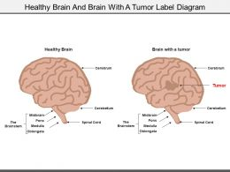 Healthy Brain And Brain With A Tumor Label Diagram